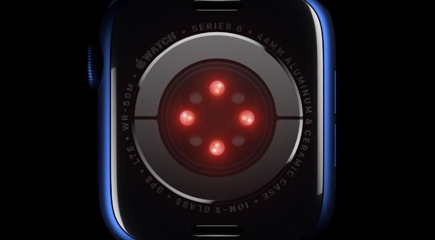 El Apple Watch suma tecnología de punta